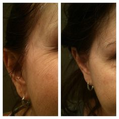 Robin's Real Results - 2 days with NeriumAD!  Unbelievable results in a couple of days-crows feet have virtually disappeared.  Imagine what she will look like in 30 days! http://www.jeanniefunk.theneriumlook.com/