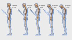 Texting neck: How hunching over your smartphone stresses your spine