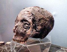 """The Museum of Witchcraft, Boscastle, United Kingdom. This is the skull of Joan Wytte, she was born in 1775 in Bodmin, Cornwall. She was sometimes called the """"Fighting Fairy Woman"""" or the """"Wytte (White) Witch"""". Her bones were disinterred and used for séances and various pranks, then later displayed at the Witchcraft Museum in Boscastle, Cornwall. In 1990 the museum was put in the hands of Graham King, who organized a burial for the skeleton of Joan Wytte."""