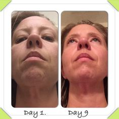 9daysof Nerium use.  Notice the eyelids are no longer puffy and drooping over eyes.  Pores on chin are reduced drastically in size. And overall tightness and firmness of skin is prevalent. Www.youngnskin.nerium.com
