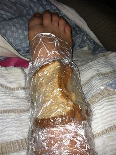 Home remedy for pulling swelling out of joints!!! Mix 1/4 cup vinegar with 1 cup water. Dip as many pieces of bread as needed to cover area. Place bread on swollen area. Cover in Saran Wrap! Place towels around to keep vinegar from leaking!!!!! Keep on for 3-5 hours. It pulls swelling out and brings the bruise to the surface!!!!! Makes it feel so much better!! Used back in the early days!