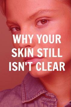 clear skin tips