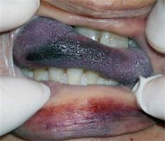 The typical hanging death involves tightening of a ligature. Petechiae have been described on the oral mucosa, base of tongue, and epiglottis. Tongue protrusion between clenched teeth is a common but unspecific finding in a typical hanging death.