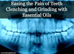 How to Ease the Pain Associated with Grinding and Clenching Teeth