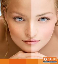 Indian skin tends to tan and pigment easily. There is a very thin line between tanning and pigmentation.  It's been 4-6 weeks and your tan hasn't gone way? See our dermatologists TODAY!