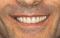 All-on-4 Implants: Teeth in a Day : The patient initially came to me for conventional dentures. He had several esthetic and functional problems: tooth loss, malocclusion, cavities and advanced periodontal disease. After the initial examination and consultation, the patient elected to have an implant supported full-arch prosthesis for the upper arch and periodontal and cosmetic work done on the lower teeth. CT scans of the  maxilla revealed sufficient bone, and the patient qualified for the Al...