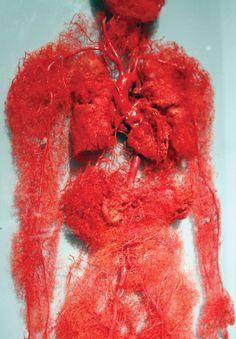 Plastinated circulatory system.