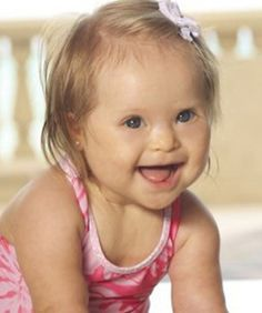 Cute Babies on Pinterest | Down Syndrome, Down Syndrome ...