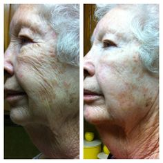 17 Days After Picture with Nerium. This Grandmother feels fabulous!  Learn more at www.wrinkleresults.nerium.com