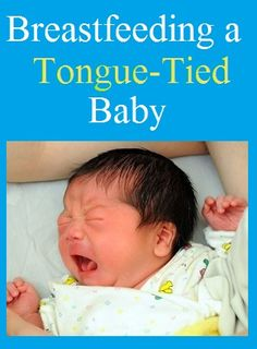 Breastfeeding a Tongue Tied Baby