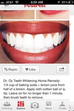 Teeth whitening, www.HealthVG.com/teeth-whitening