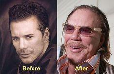 Aging... Mickey Rourke