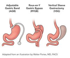 Bariatric Surgeries