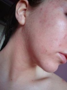 Acne Scars- Acne Scar Symptoms, Treatment and home remedies