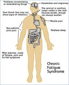Vitamins For Chronic Fatigue  tootiredtolivebutstillbreathing.blogspot.com