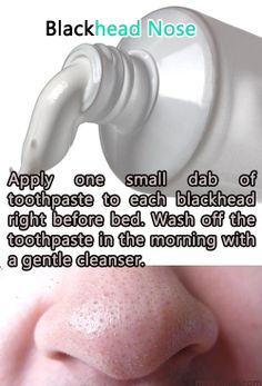 BLACK HEAD NOSE REMEDY USING TOOTH PASTE _________________________________________  • One can put toothpaste on the blackhead before you go to bed. This helps reducing the swelling if kept overnight. But, make sure that it is the paste not the gel.