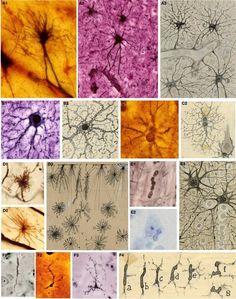 Image of cell explorer Cajal's histological preps & brain illustrations showing glial cells & astrocytes