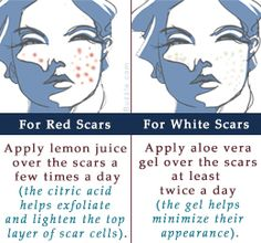 How to Get Rid of Scars Naturally - Healing Scars Naturally