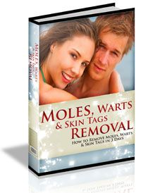 If you're having to endure a lifetime of humiliation and ridicule, or are suffering from depression and feelings of inferiority or insecurity due to having moles, warts or skin tags openly visible to others, then suffer no more.  Get rid of skin tags, warts and moles by checking out Charles Davidson's ground-breaking protocols for removing them naturally in just 3 days.  Click here for more information - http://get-rid-of.biz/Moles_Warts_And_Skin_Tags_Removal.html $37.00