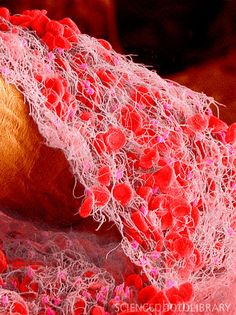 Blood clot. Coloured scanning electron micrograph (SEM) of a blood clot from the inner wall of the left ventricle of a human heart. Red blood cells (erythrocytes) are trapped within a fibrin protein mesh (cream). The fibrin mesh is formed in response to chemicals secreted by platelets (pink), fragments of white blood cells. Clots are formed in response to cardiovascular disease or injuries to blood vessels. Connective tissue (orange) is also seen.