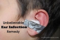 I can't believe this Natural Ear Infection Remedy worked. And I can't believe I tried it! Would you try this ear infection treatment on your...