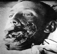 Graphic Image - WWI Trench warfare exposed soldiers to a vast increase in head and facial injuries, leading to tremendous advancements in plastic surgery and facial reconstruction. However, not all surgeries were successful     http://www.uterinefury.com/cgi-bin/yabb2/YaBB.pl?num=1163302998