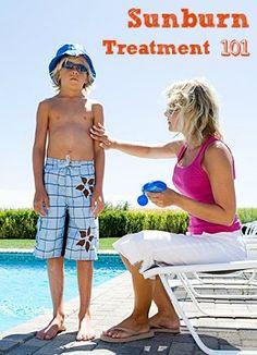 Sunburn Treatment 101 | Tipsaholic.com #sunburn #remedy #prevention #treatment #outdoors