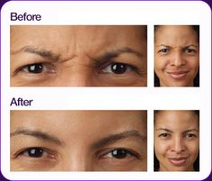 """How to tell when someone has had botox.  You can smile and your eyes can get bigger.. but the lines and creases (around your forehead and eyes) you get when you are excited, angry, etc - are frozen with botox. """"Botulinum toxin: A toxin produced by the bacterium Clostridium botulinum that is the most poisonous biological substance known. """""""