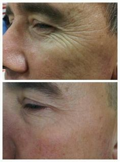 How to reduce crow's feet, mouth wrinkles, and tone sagging face and neck skin with just a few facial aerobics exercises. How to look younger for men and women using facelift exercises http://www.facelift-without-surgery.biz/faceliftwithoutsurgery.html  #yogafaceexercises #facialtoningsystem #faceliftwithoutsurgery #naturalfacelift #menwomenlookingyounger