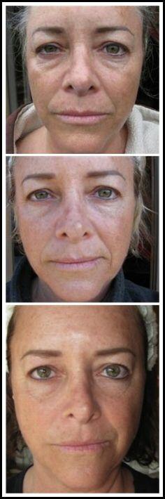 #Nerium #Wrinklesgone #Realpeople http://Dereknmelissa.nerium.com