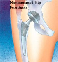 Total Hip Replacement (Arthroplasty)