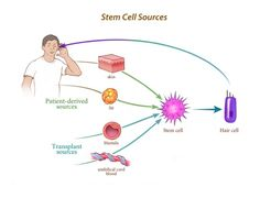 Blog post on: The Heller Lab Research into Cures for Hearing Loss   #stemcells #hearinglosscure