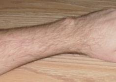 DOLOR DE ANGINAS: Buscar con tu dedo pulgar una bolita en la parte superior de la muñeca. Una vez encontrada, debes presionar moviendo el dedo de forma lineal desde tu muñeca hacia el antebrazo, ayudándote de un poco de saliva. Una vez realizado este proceso deberas colocar tu dedo pulgar flexionado entre tus dientes con la uña hacia arriba y presionar. Esta operación la tendrás que repetir tres veces. Todo el proceso se debera repetir tres o cuatro veces en ayunas. Enviado por Gemma.