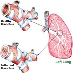 Home Remedies for Bronchitis in Children