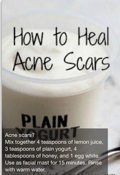 Heal Acne Scars