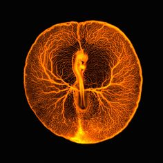 This fluorescence micrograph shows the vascular system of a developing chicken embryo, two days after fertilization. Injecting fluorescent dextran revealed the entire vasculature used by the embryo to feed itself from the rich yolk inside the egg.    VINCENT PASQUEE, UNIVERSITY OF CAMBRIDGE