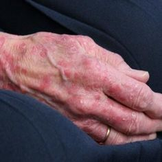 Natural Cures For Eczema On Hands