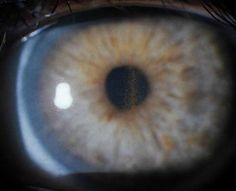 Fuso de Krukenberg: pigmentos na parte interna da córnea / Krukenberg's spindle: deposit of pigment on the posterior surface of the cornea.