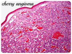 Cherry Angioma / http://www.cheeseslave.com/cherry-angiomas-iodine-and-bromide-detox/