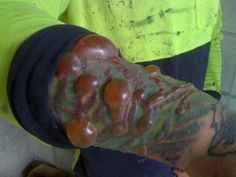 THIS IS EXACTLY WHY YOU SHOULD REALLY THINK ABOUT THE TATOO YOU WANT!    this guy was trying to get his lasered off, and suffered horrible blistering and such. yuck!