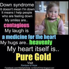 Down syndrome is beautiful!