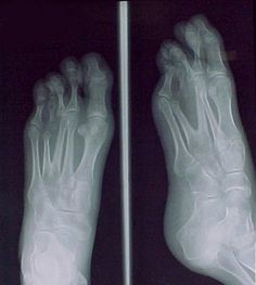 Fusion of metatarsal bases 3 and 4.