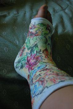 Arm cast ideas on pinterest leg cast arm cast and for Arm cast decoration ideas