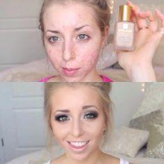 Oh what makeup does..Double Wear, by Estée Lauder.