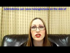 ▶ Overview of Telangeictasia - YouTube