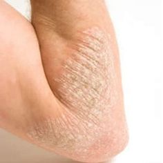 Useful Home Remedies For Eczema