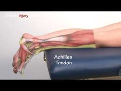 A succinct look at Achilles Tendonitis / Tendinopathy, explaining the symptoms, common causes and treatment, including exercises, taping and massage.   For more information on Achilles Tendonistis Treatment, please visit: http://www.sportsinjuryclinic.net/sport-injuries/ankle-achilles-shin-pain/achilles-tendonitis    Transcript:    Achilles Tendoniti...
