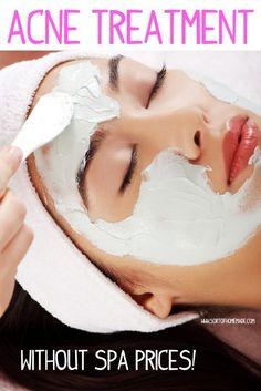DIY Acne mask. Basic aspirin and honey. Great blog.