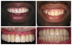 Denture Solutions is a full service Denture Practice, offering a wide variety of denture styles that include full, partial and custom dentures. Our experienced staff ...