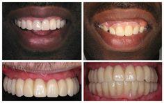 wide varieti, partial dentur, servic team, dental team, includ full, experienc staff, cheap dental, full servic